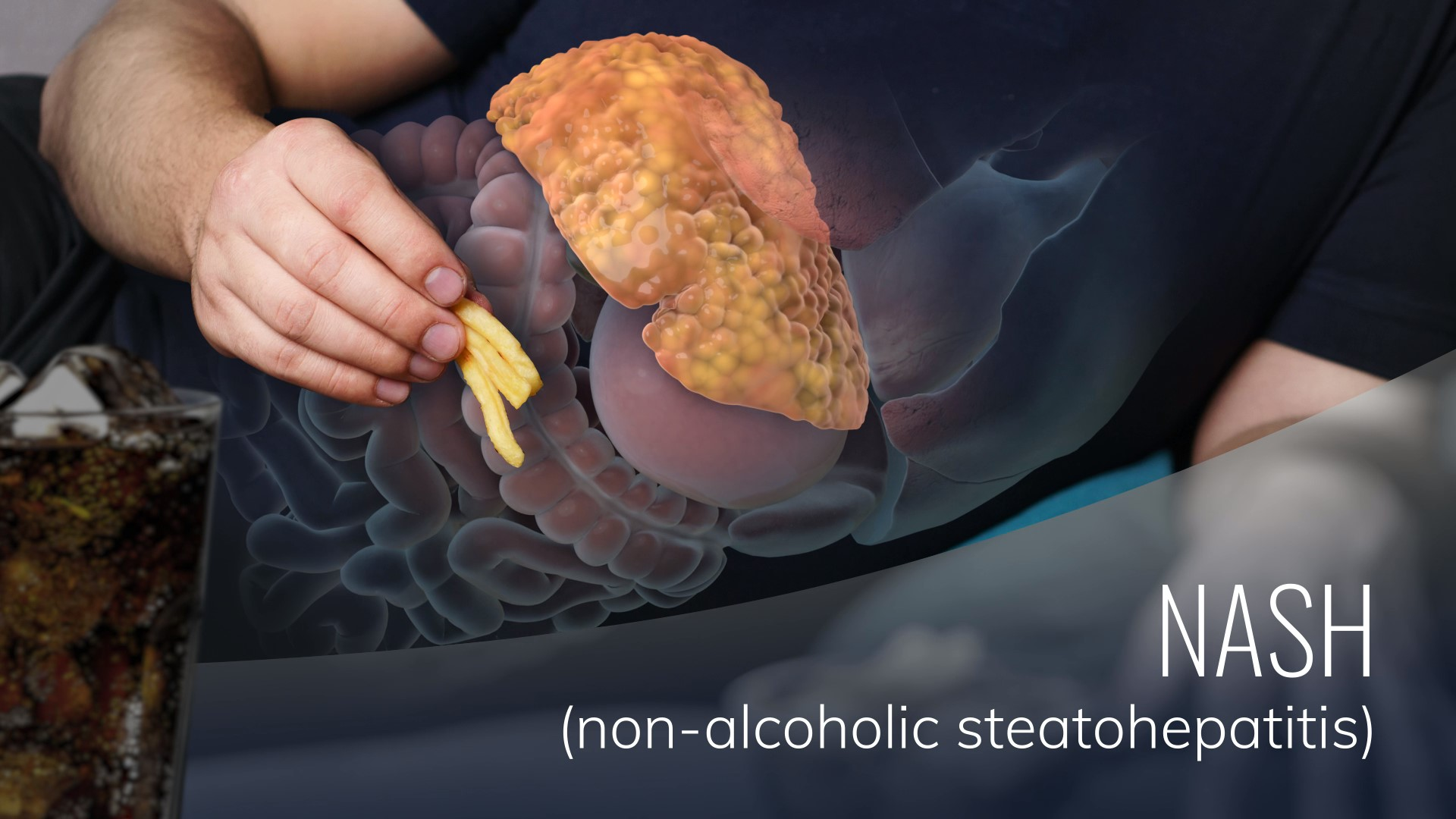 Hepatitis Caused by Nonalcoholic Steatosis (NASH)