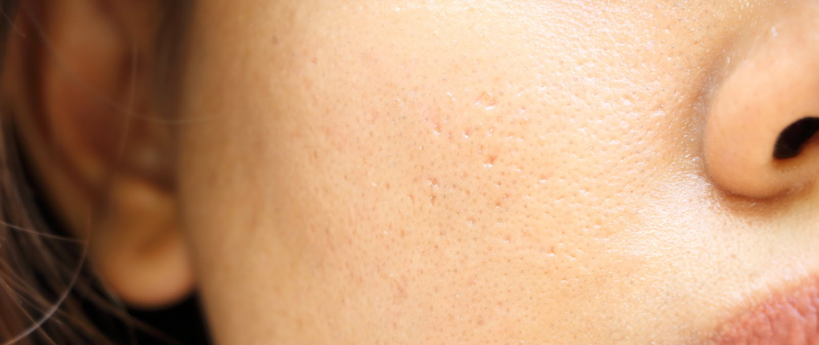 Is it possible to Reduce the Number of Open Pores?