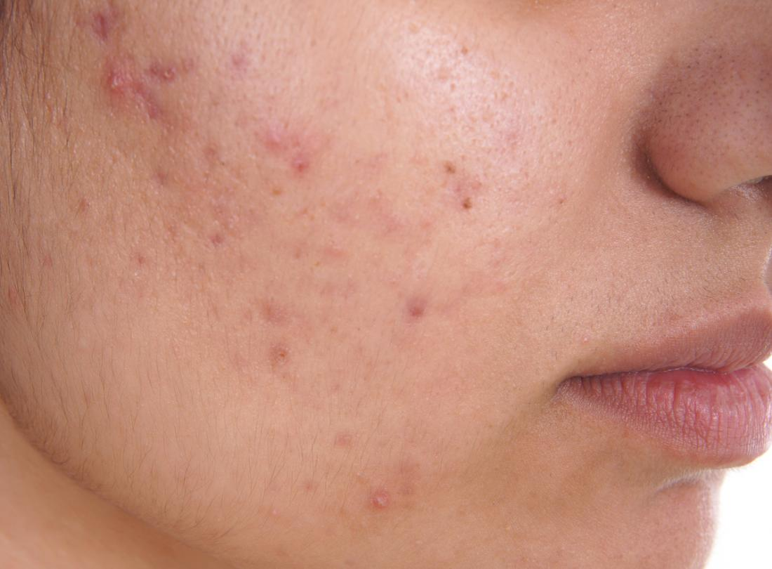 Clear and Unbiased Facts about Acne Removal
