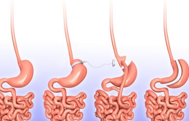 How Much Does a Gastric Sleeve Cost in Tijuana?